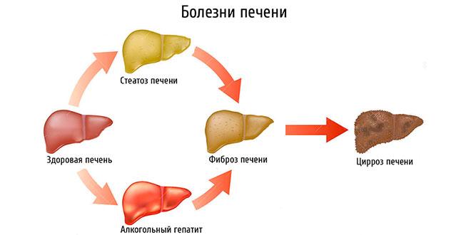 Симптомы заболевания печени,признаки болезни и лечение